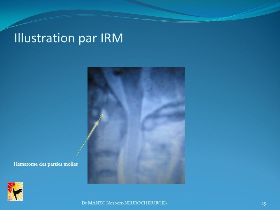 Illustration par IRM Hématome des parties molles