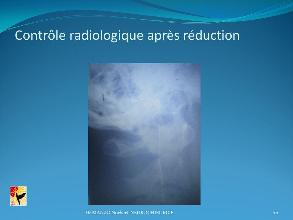 Contrôle radiologique après réduction