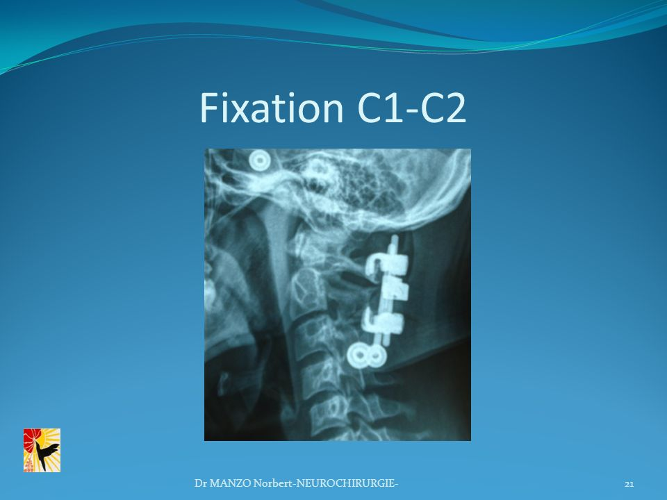 Fixation C1-C2 Dr MANZO Norbert-NEUROCHIRURGIE-