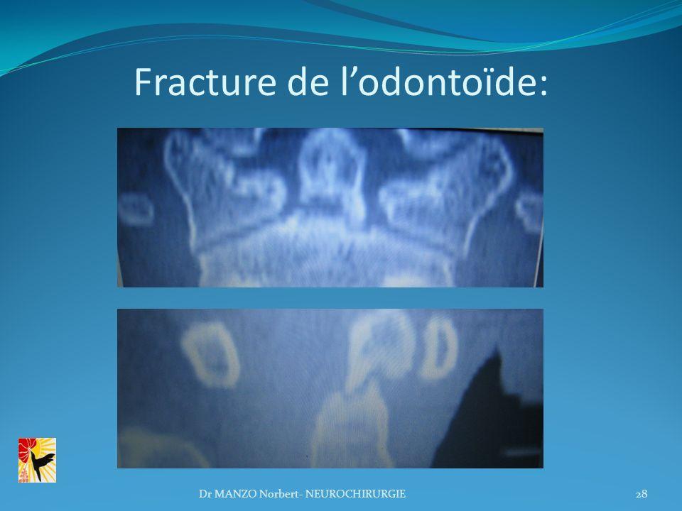 Fracture de l'odontoïde: