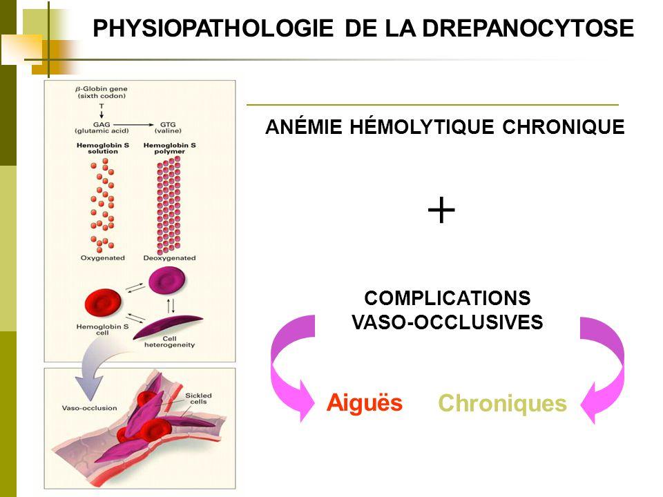 + PHYSIOPATHOLOGIE DE LA DREPANOCYTOSE Aiguës Chroniques