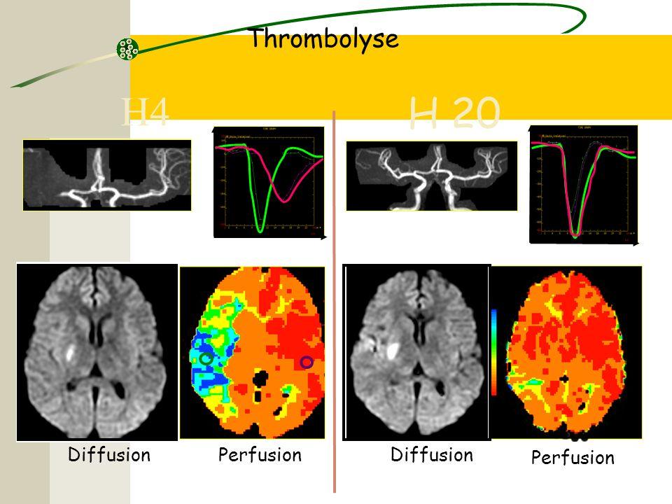 Thrombolyse H4 H 20 Diffusion Perfusion Diffusion Perfusion