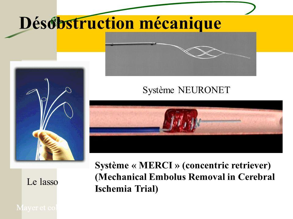 Désobstruction mécanique