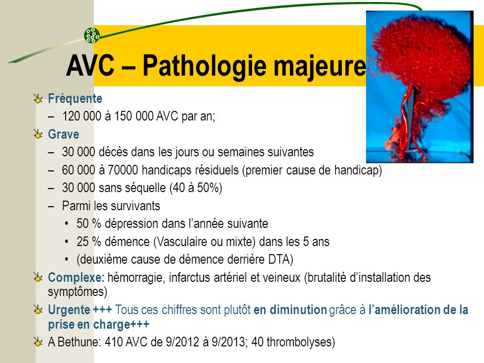 AVC – Pathologie majeure