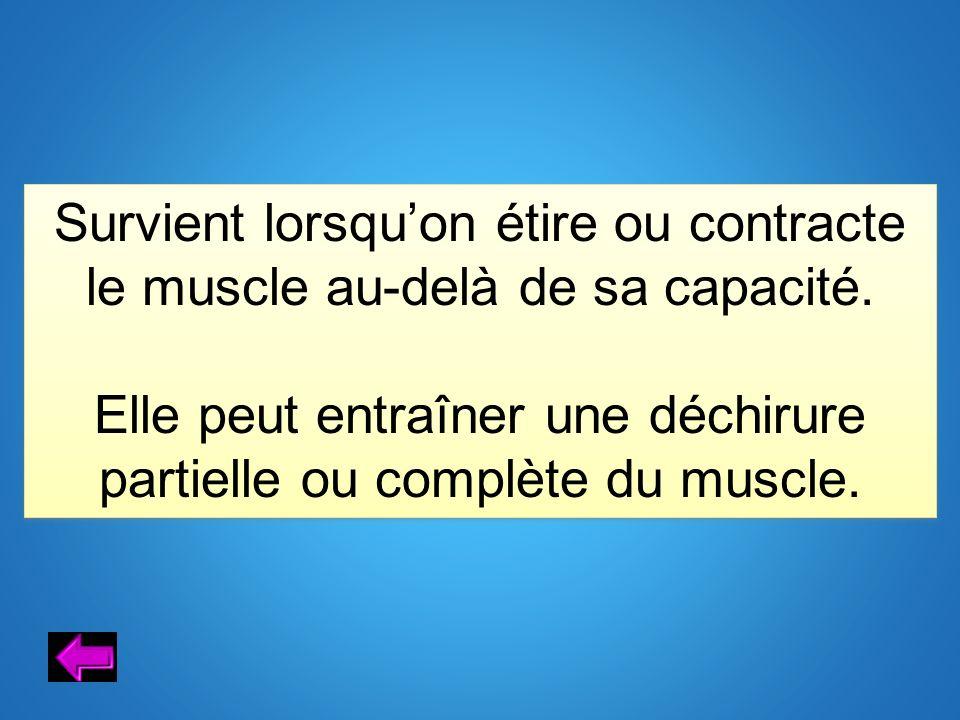 Elle peut entraîner une déchirure partielle ou complète du muscle.