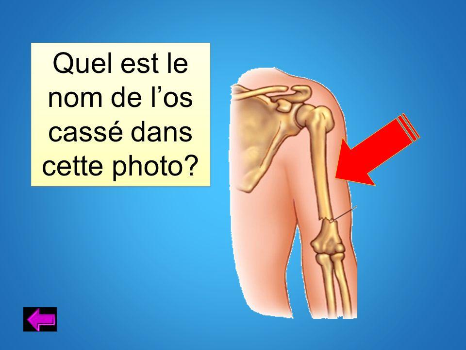 Quel est le nom de l'os cassé dans cette photo