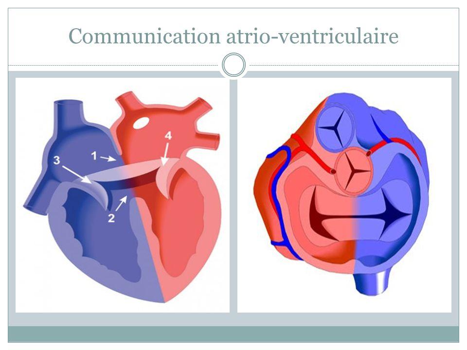 Communication atrio-ventriculaire