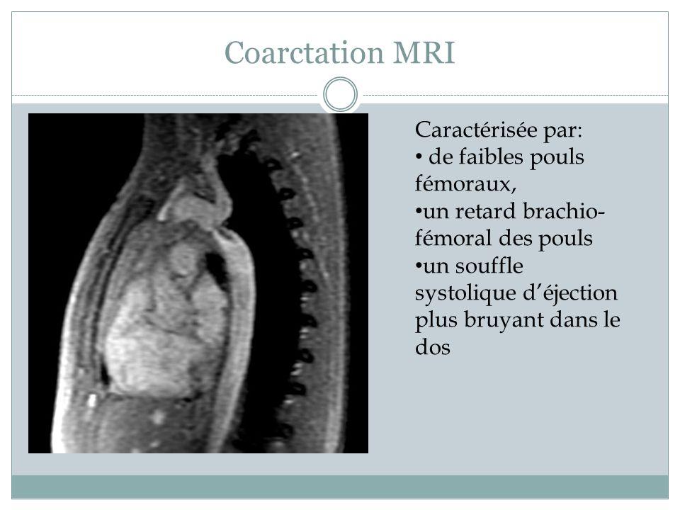 Coarctation MRI Caractérisée par: de faibles pouls fémoraux,