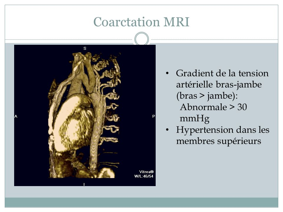 Coarctation MRI Gradient de la tension artérielle bras-jambe (bras > jambe): Abnormale > 30 mmHg.