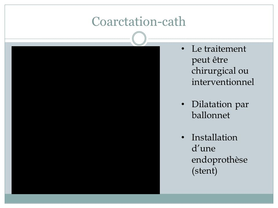 Coarctation-cath Le traitement peut être chirurgical ou interventionnel. Dilatation par ballonnet.