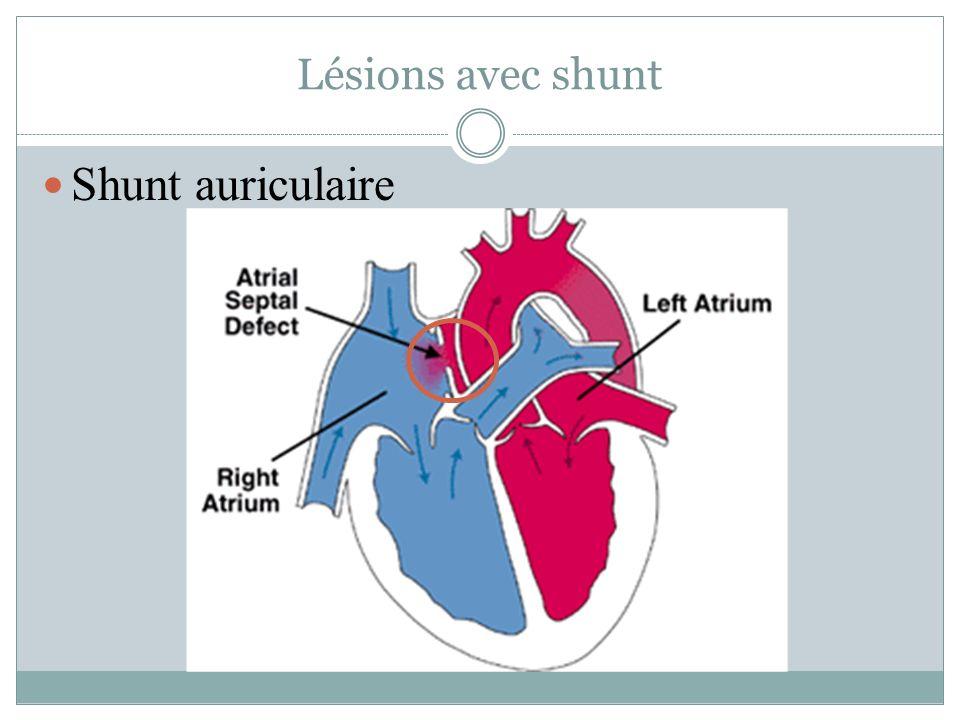 Lésions avec shunt Shunt auriculaire