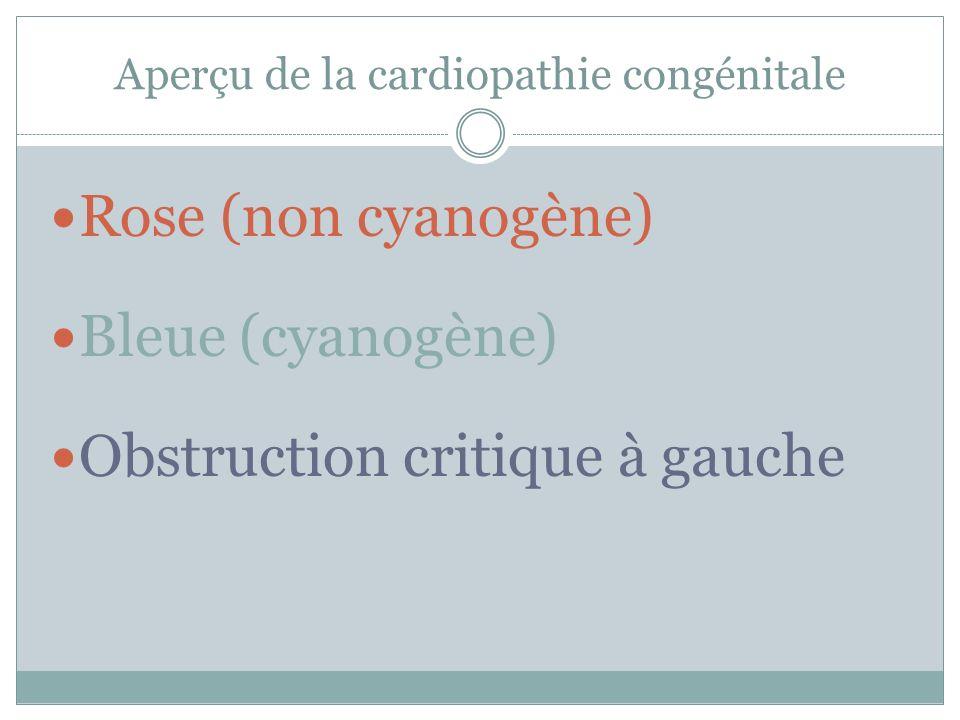 Aperçu de la cardiopathie congénitale