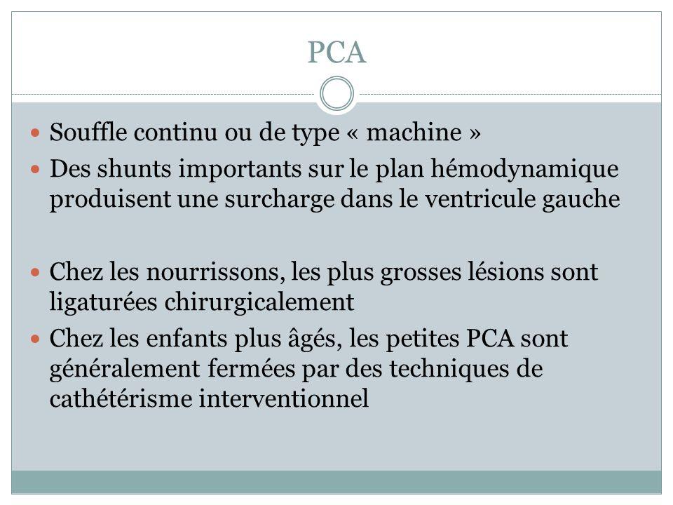 PCA Souffle continu ou de type « machine »