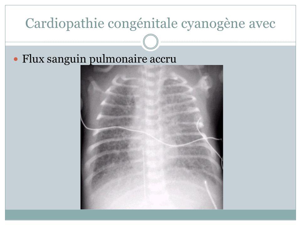 Cardiopathie congénitale cyanogène avec
