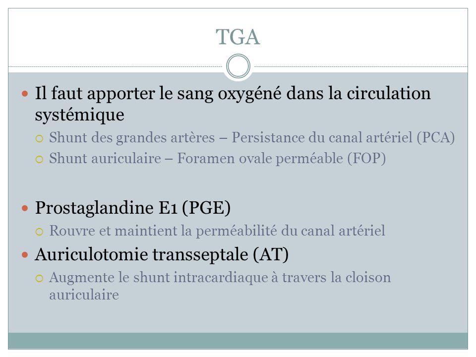 TGA Il faut apporter le sang oxygéné dans la circulation systémique