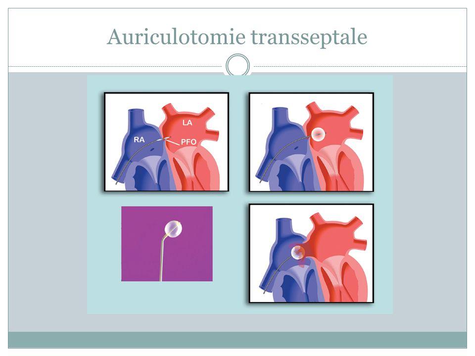 Auriculotomie transseptale