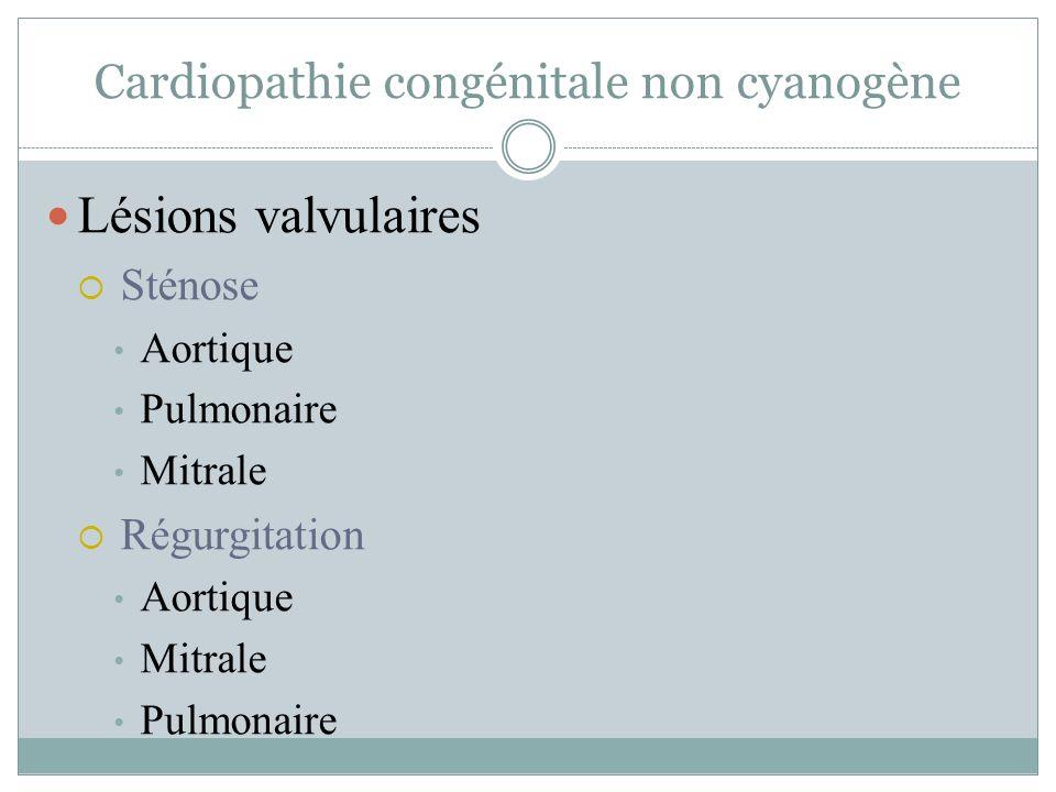 Cardiopathie congénitale non cyanogène