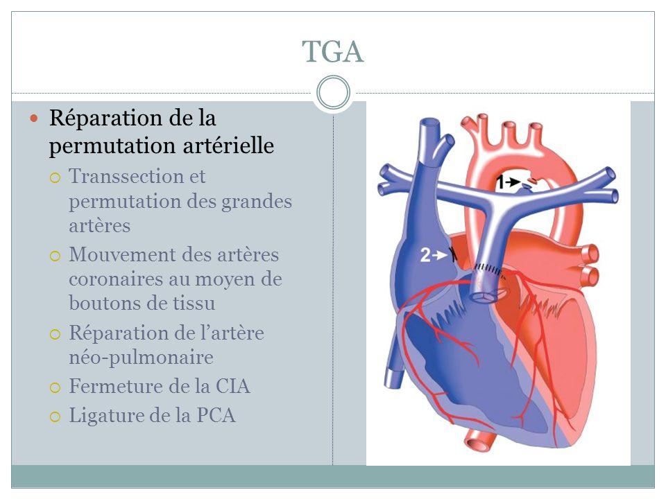 TGA Réparation de la permutation artérielle