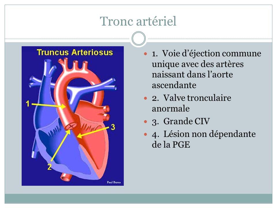 Tronc artériel 1. Voie d'éjection commune unique avec des artères naissant dans l'aorte ascendante.