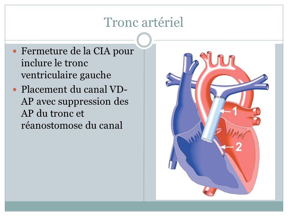 Tronc artériel Fermeture de la CIA pour inclure le tronc ventriculaire gauche.
