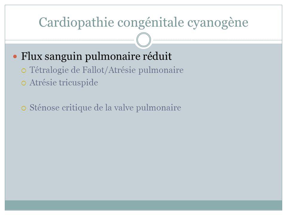 Cardiopathie congénitale cyanogène