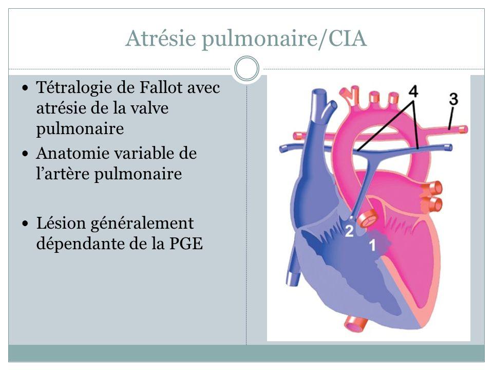 Atrésie pulmonaire/CIA