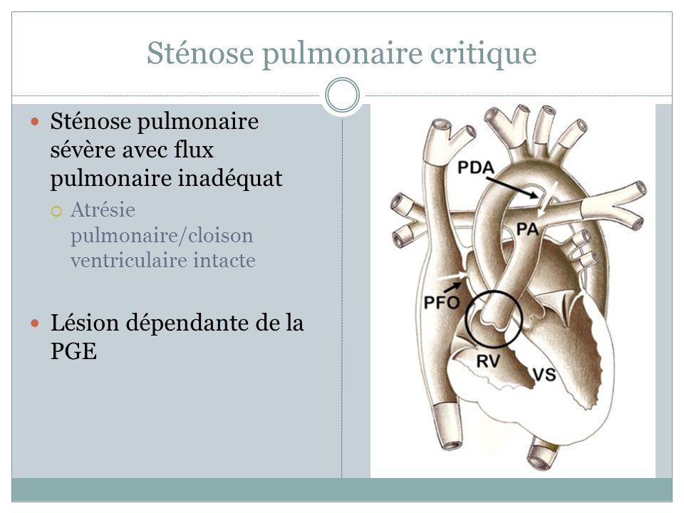 Sténose pulmonaire critique