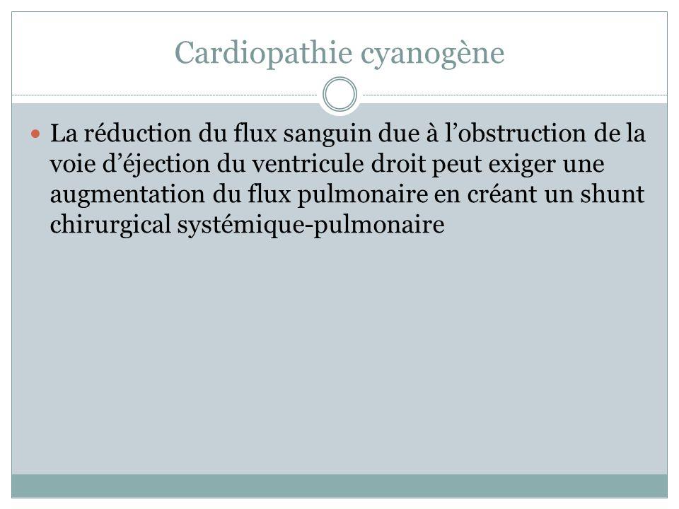 Cardiopathie cyanogène