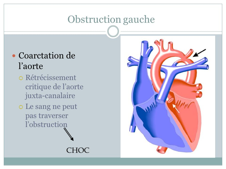 Obstruction gauche Coarctation de l'aorte