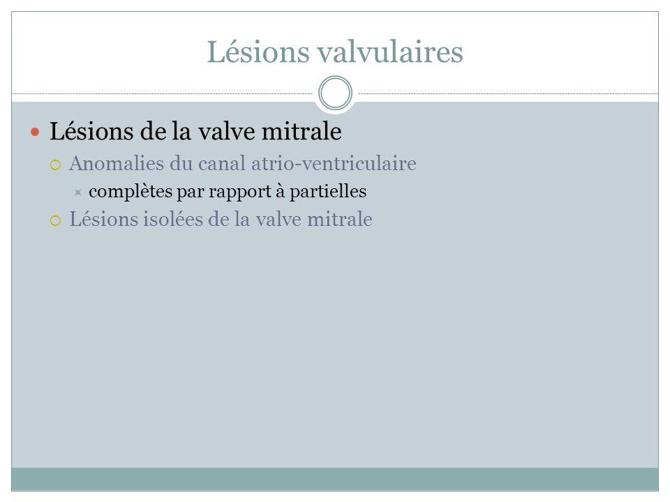 Lésions valvulaires Lésions de la valve mitrale