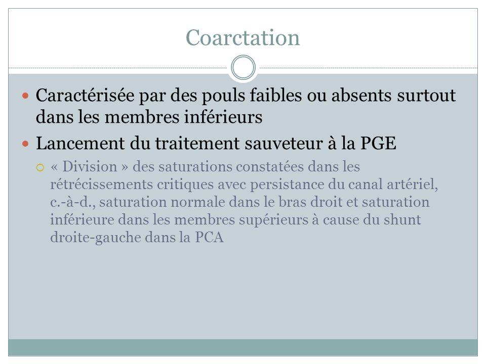 Coarctation Caractérisée par des pouls faibles ou absents surtout dans les membres inférieurs. Lancement du traitement sauveteur à la PGE.