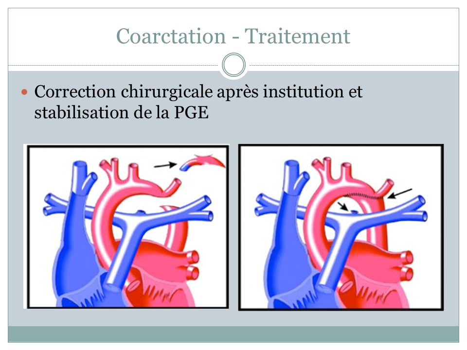 Coarctation - Traitement