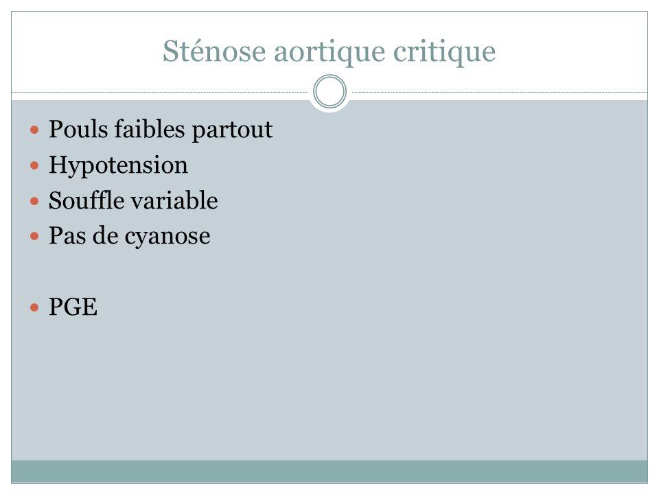 Sténose aortique critique