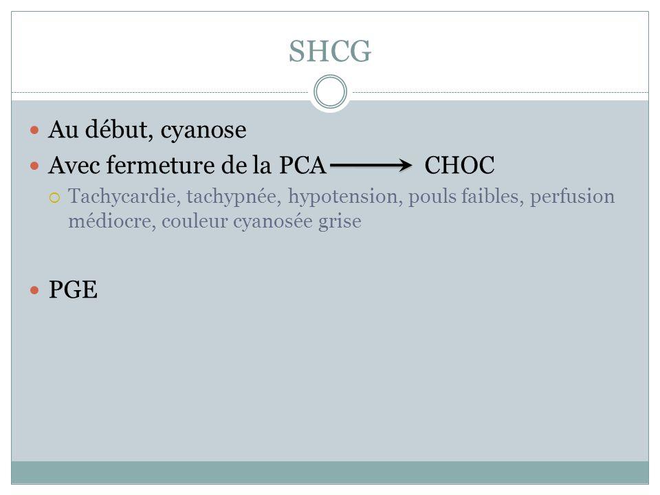 SHCG Au début, cyanose Avec fermeture de la PCA CHOC PGE