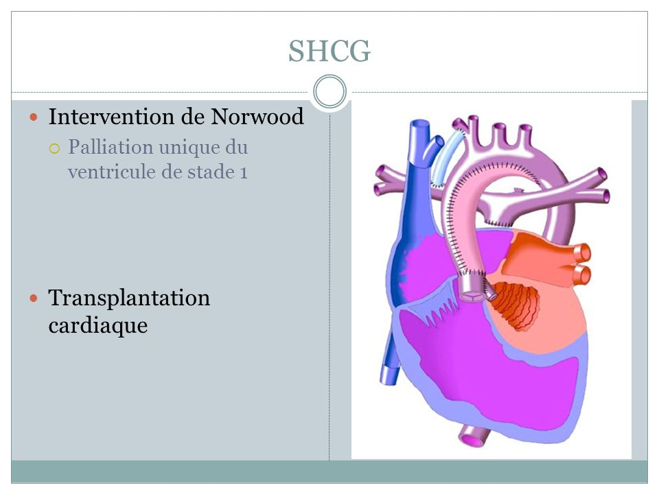 SHCG Intervention de Norwood Transplantation cardiaque