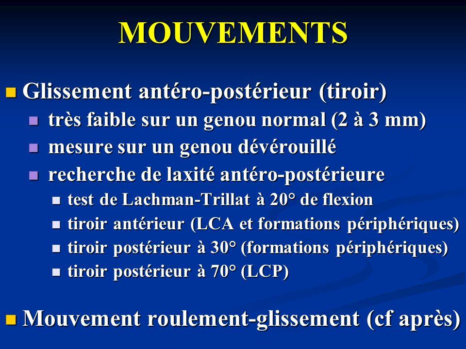 MOUVEMENTS Glissement antéro-postérieur (tiroir)