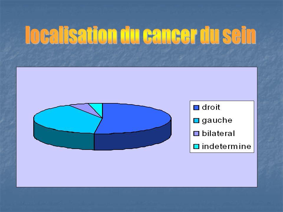 localisation du cancer du sein