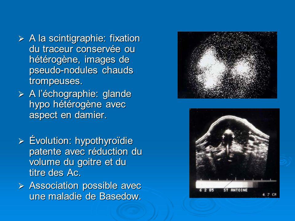A la scintigraphie: fixation du traceur conservée ou hétérogène, images de pseudo-nodules chauds trompeuses.