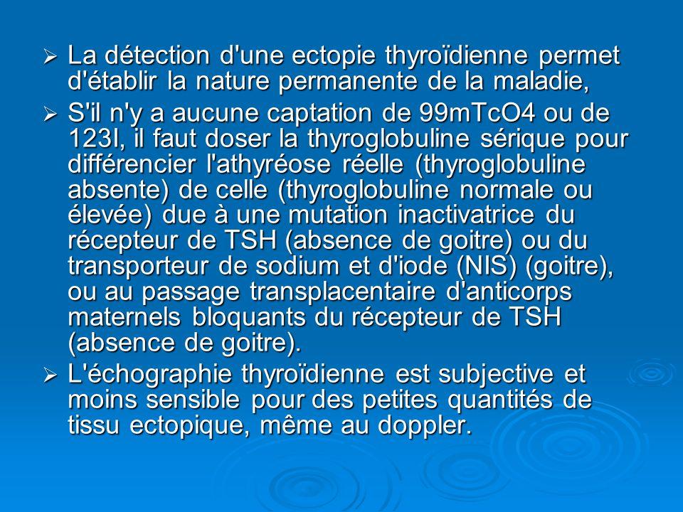 La détection d une ectopie thyroïdienne permet d établir la nature permanente de la maladie,