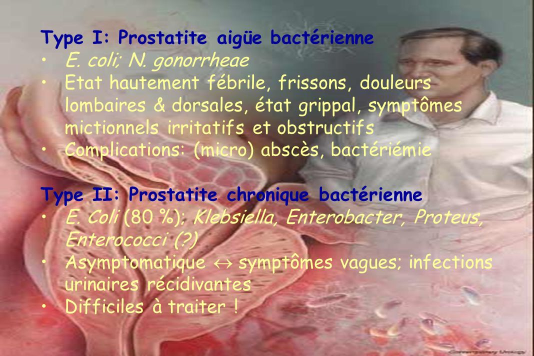 Type I: Prostatite aigüe bactérienne