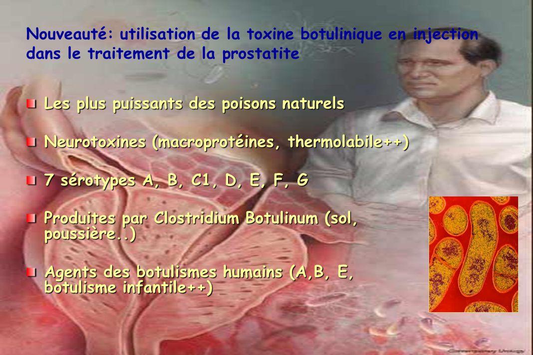 Nouveauté: utilisation de la toxine botulinique en injection dans le traitement de la prostatite