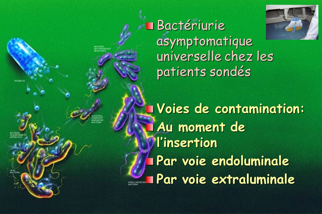 Bactériurie asymptomatique universelle chez les patients sondés