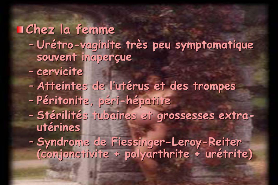 Chez la femme Urétro-vaginite très peu symptomatique souvent inaperçue