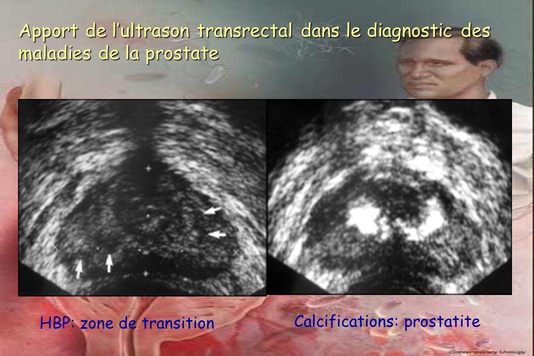 Apport de l'ultrason transrectal dans le diagnostic des