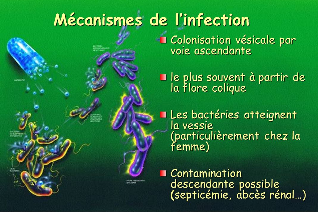 Mécanismes de l'infection