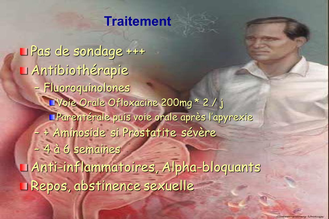 Anti-inflammatoires, Alpha-bloquants Repos, abstinence sexuelle