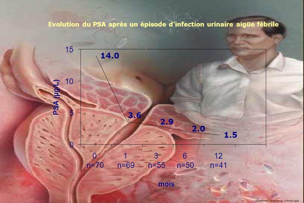 Evolution du PSA après un épisode d'infection urinaire aigüe fébrile