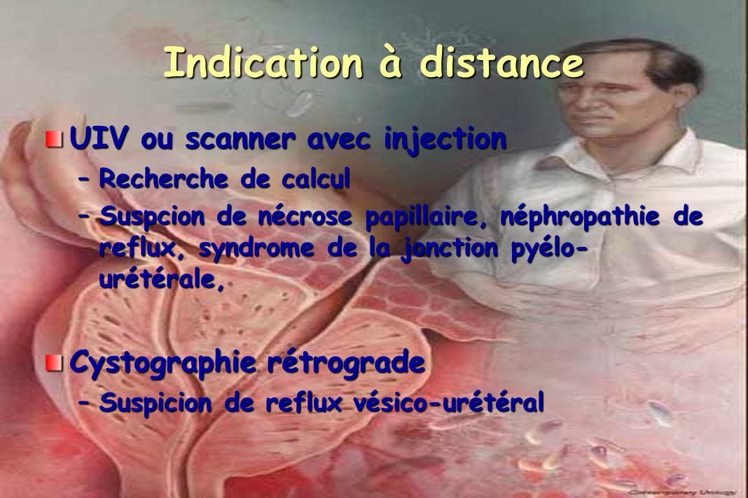 Indication à distance UIV ou scanner avec injection