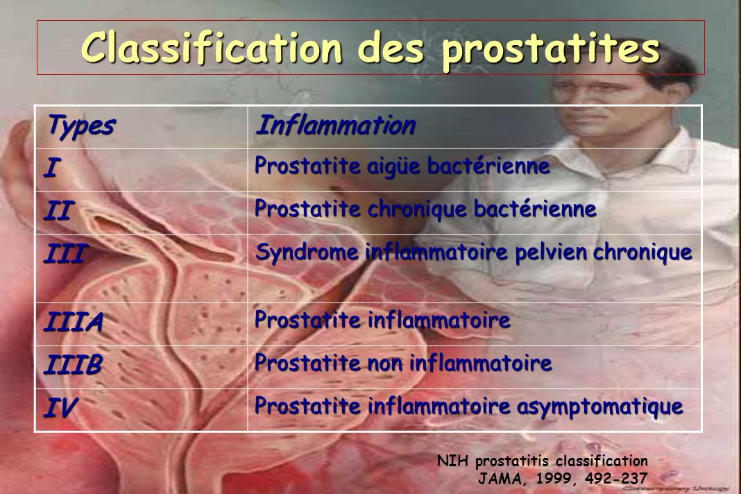 Classification des prostatites