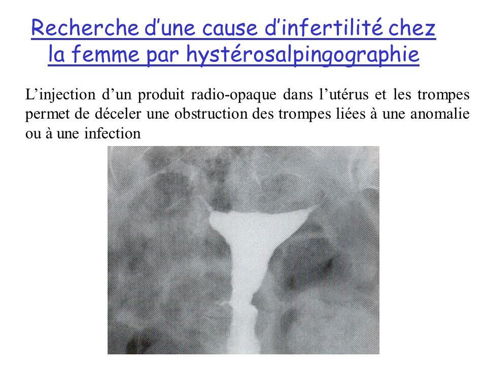 Recherche d'une cause d'infertilité chez la femme par hystérosalpingographie